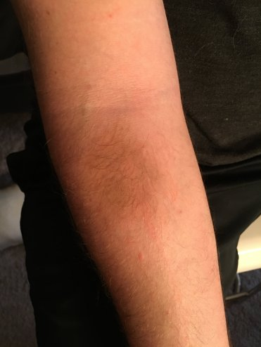 aged bruise effect